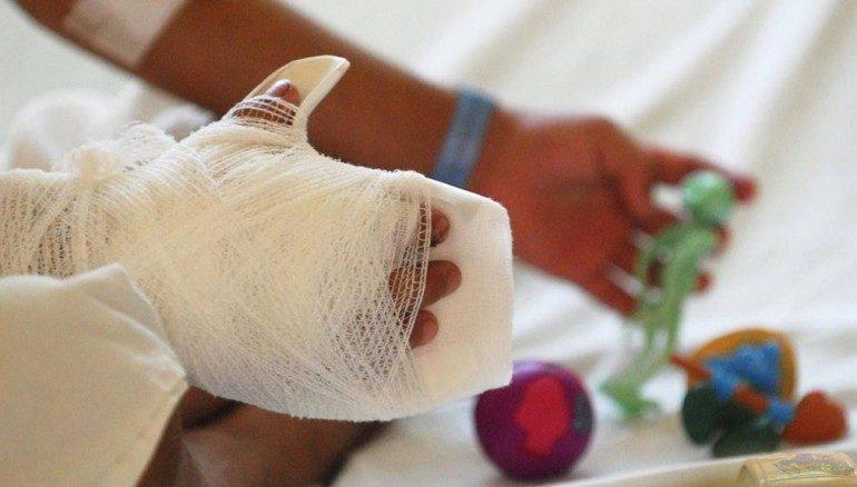 Nuevas amonestaciones a padres de niños afectados — Quemados con pólvora