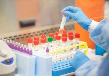 us-long-island-laboratory-to-start-semi-automated-coronavirus-te_32113140_0-444x311.jpg