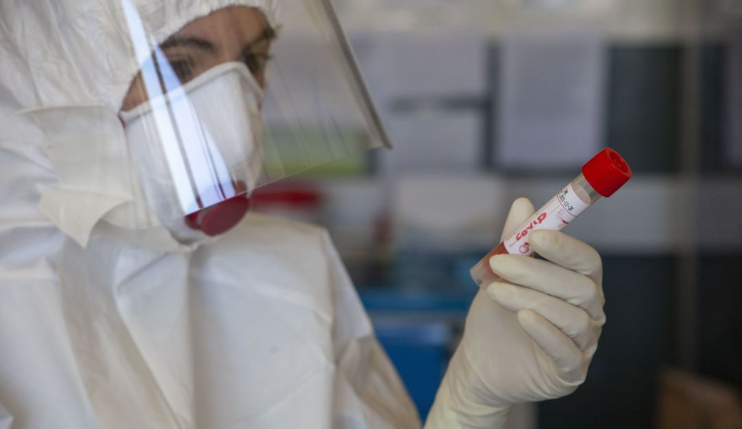 Colombia supera las 80.000 muertes por COVID-19 tras registrarse 490 más